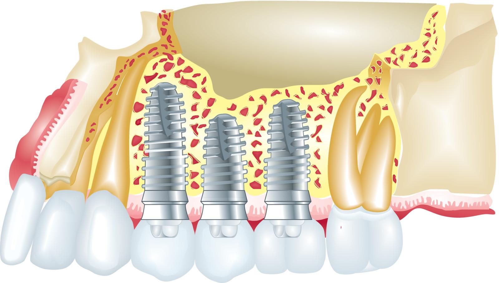 All on 4 Zahnimplantate